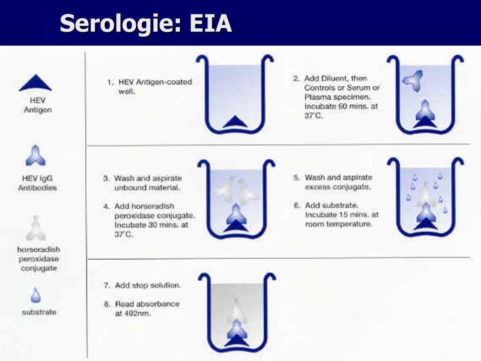 Serologie: EIA