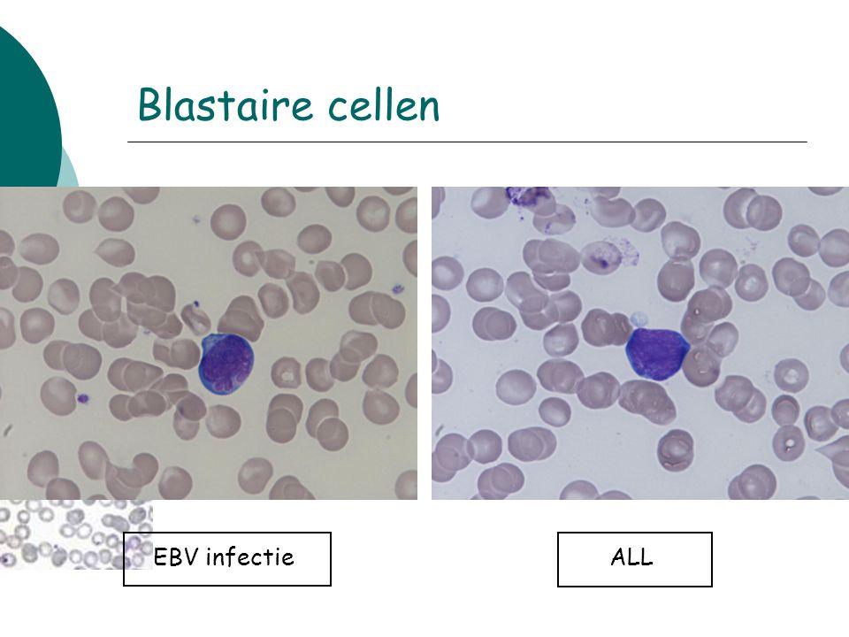 EBV infectieALL Blastaire cellen
