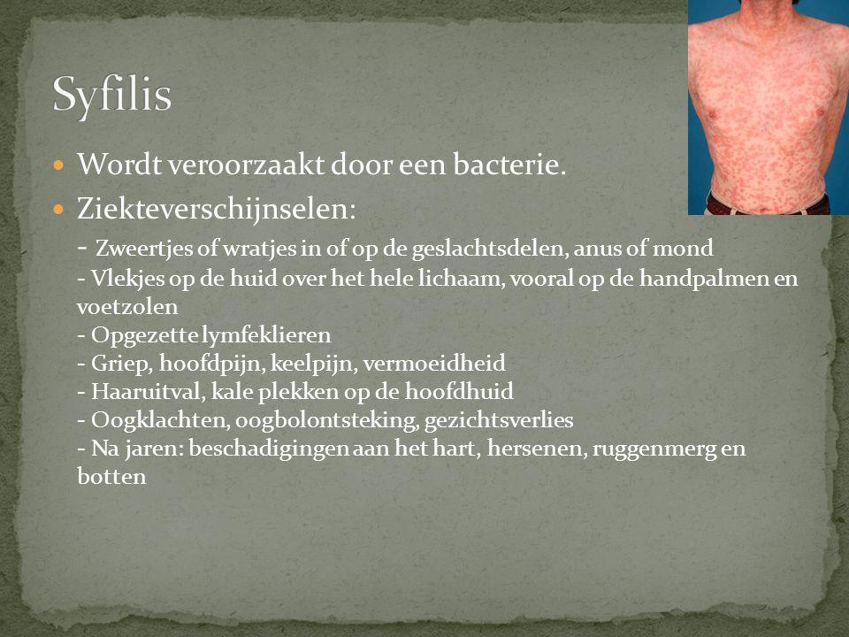 De meeste bekende SOA Wordt veroorzaakt door het HIV virus Tast het afweersysteem aan.