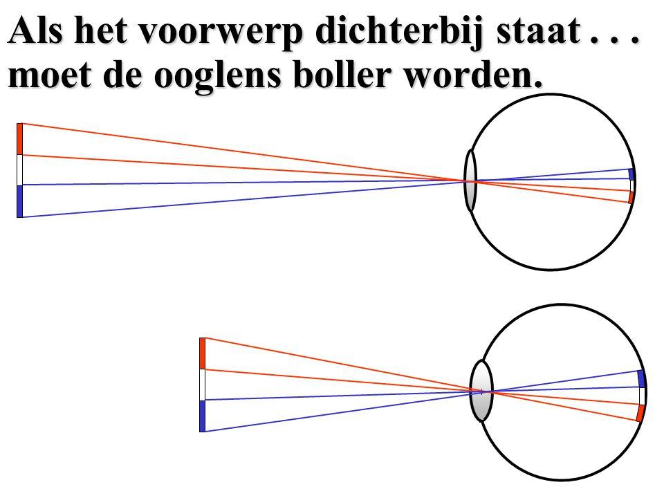lensnetvlies Een schematische tekening.