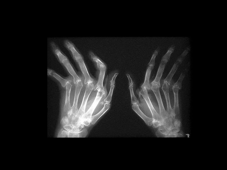 19 Regionale Vasculaire Avond19 Reumatoide arthritis