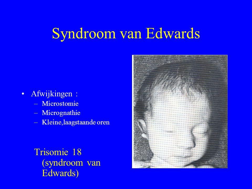 Syndroom van Edwards Afwijkingen : –Microstomie –Micrognathie –Kleine,laagstaande oren Trisomie 18 (syndroom van Edwards)