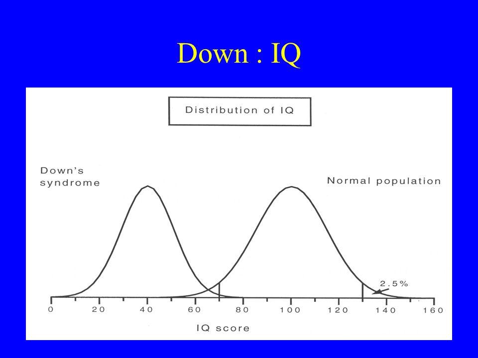 Down : IQ