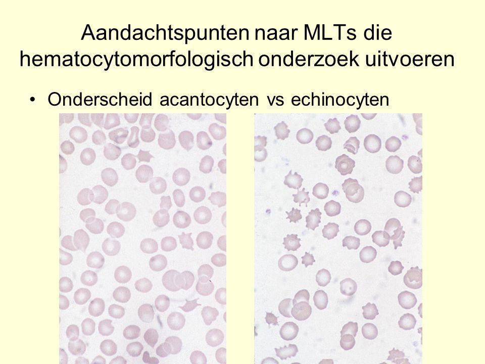 Aandachtspunten naar MLTs die hematocytomorfologisch onderzoek uitvoeren Onderscheid acantocyten vs echinocyten