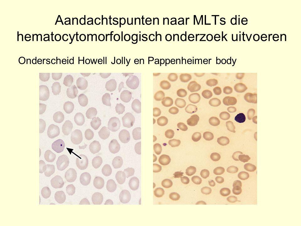 Aandachtspunten naar MLTs die hematocytomorfologisch onderzoek uitvoeren Onderscheid Howell Jolly en Pappenheimer body