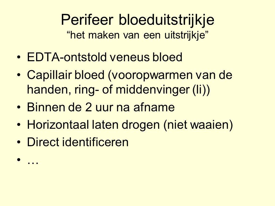 """Perifeer bloeduitstrijkje """"het maken van een uitstrijkje"""" EDTA-ontstold veneus bloed Capillair bloed (vooropwarmen van de handen, ring- of middenvinge"""
