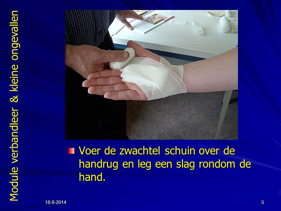 Module verbandleer & kleine ongevallen 18-9-20145 Voer de zwachtel schuin over de handrug en leg een slag rondom de hand.