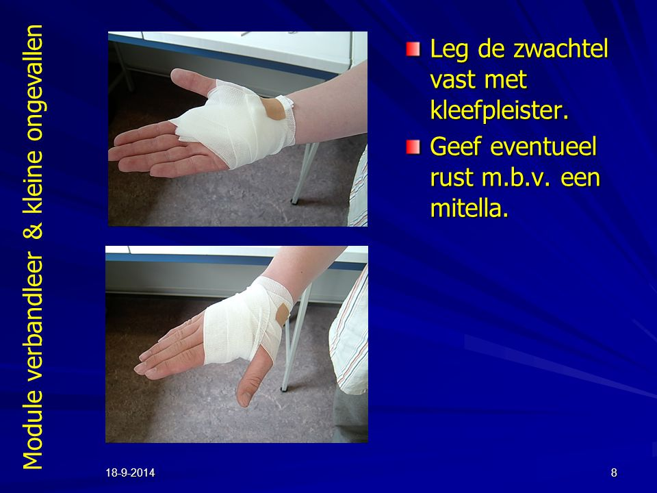 Module verbandleer & kleine ongevallen 18-9-20148 Leg de zwachtel vast met kleefpleister.