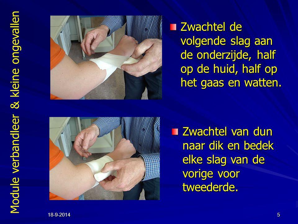 Module verbandleer & kleine ongevallen 18-9-20145 Zwachtel de volgende slag aan de onderzijde, half op de huid, half op het gaas en watten. Zwachtel v