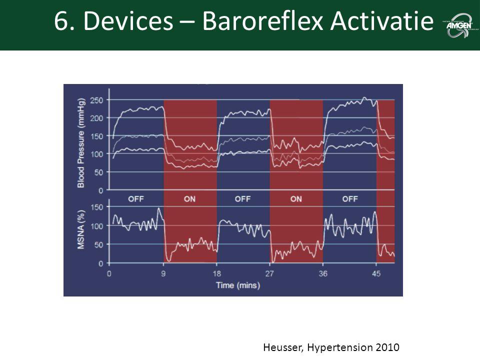 6. Devices – Baroreflex Activatie Zie CVRx website Heusser, Hypertension 2010