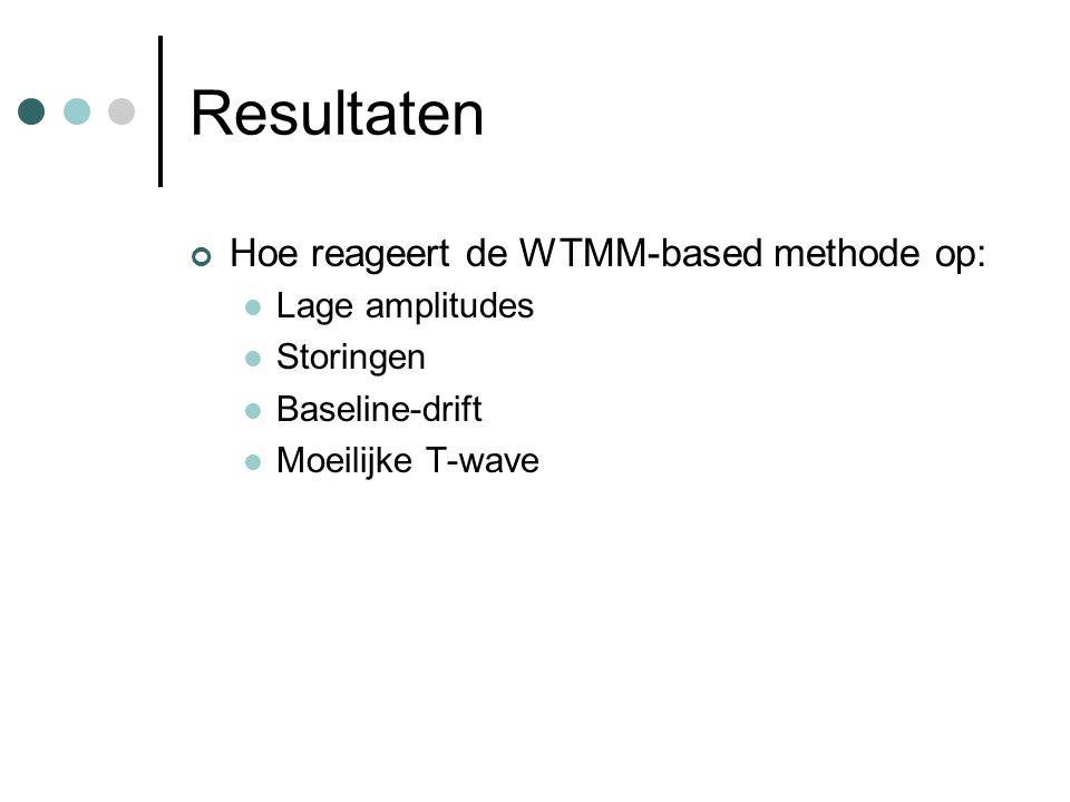 Resultaten Hoe reageert de WTMM-based methode op: Lage amplitudes Storingen Baseline-drift Moeilijke T-wave