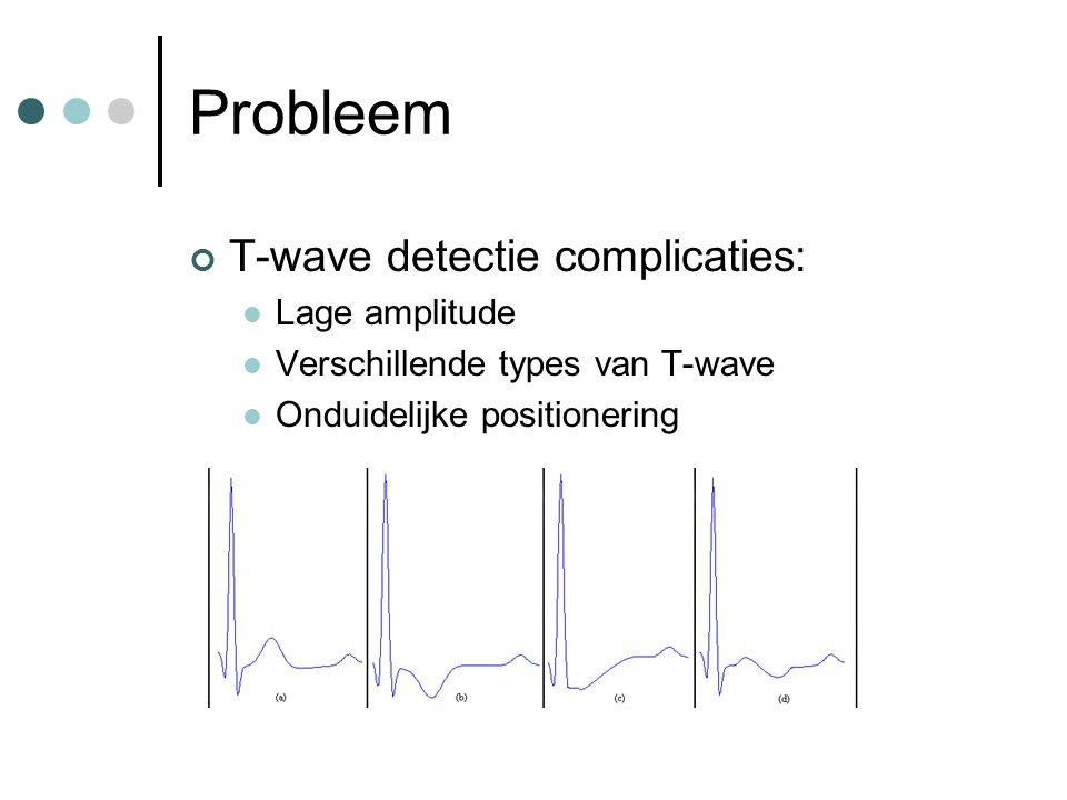 Probleem T-wave detectie complicaties: Lage amplitude Verschillende types van T-wave Onduidelijke positionering