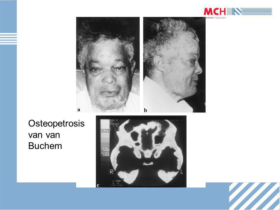 Osteopetrosis van van Buchem