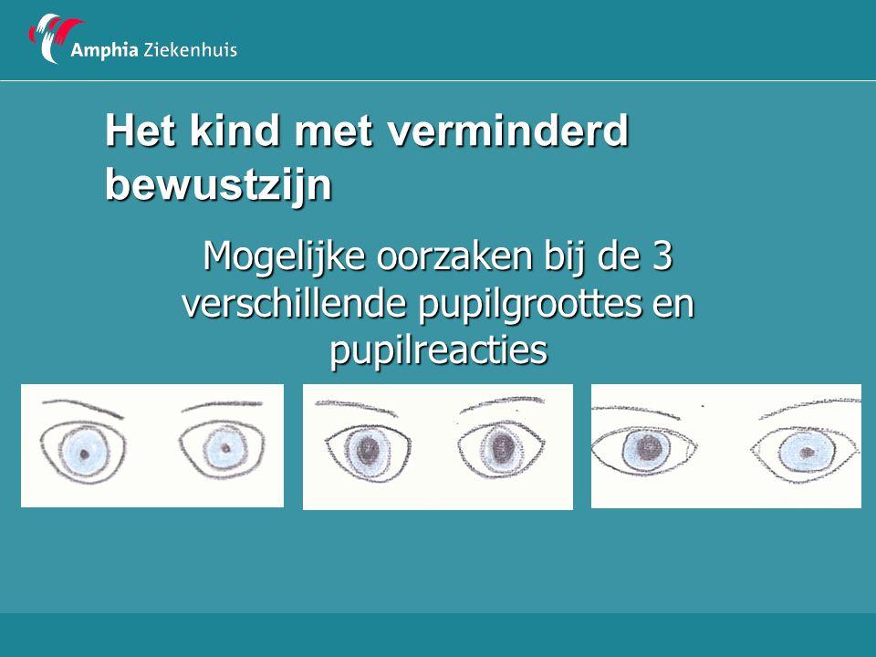 Het kind met verminderd bewustzijn Mogelijke oorzaken bij de 3 verschillende pupilgroottes en pupilreacties