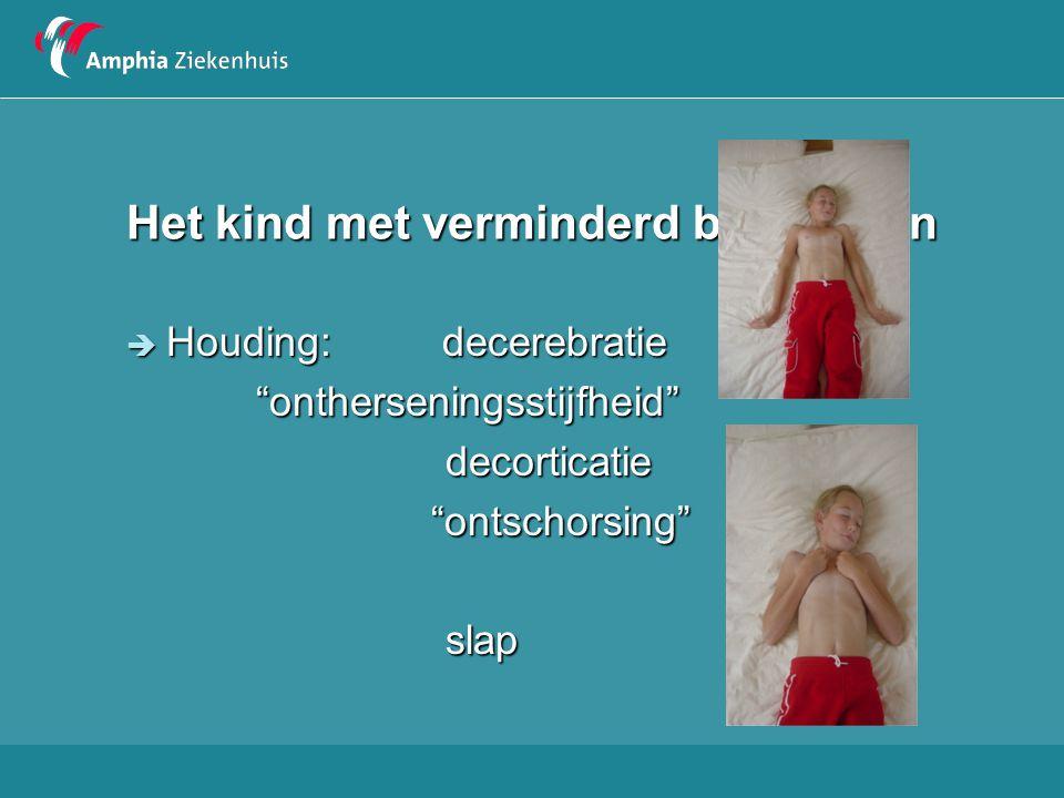 """Het kind met verminderd bewustzijn  Houding: decerebratie """"ontherseningsstijfheid"""" """"ontherseningsstijfheid""""decorticatie """"ontschorsing"""" """"ontschorsing"""""""