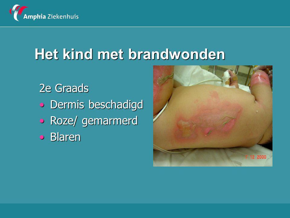 Het kind met brandwonden 2e Graads Dermis beschadigdDermis beschadigd Roze/ gemarmerdRoze/ gemarmerd BlarenBlaren