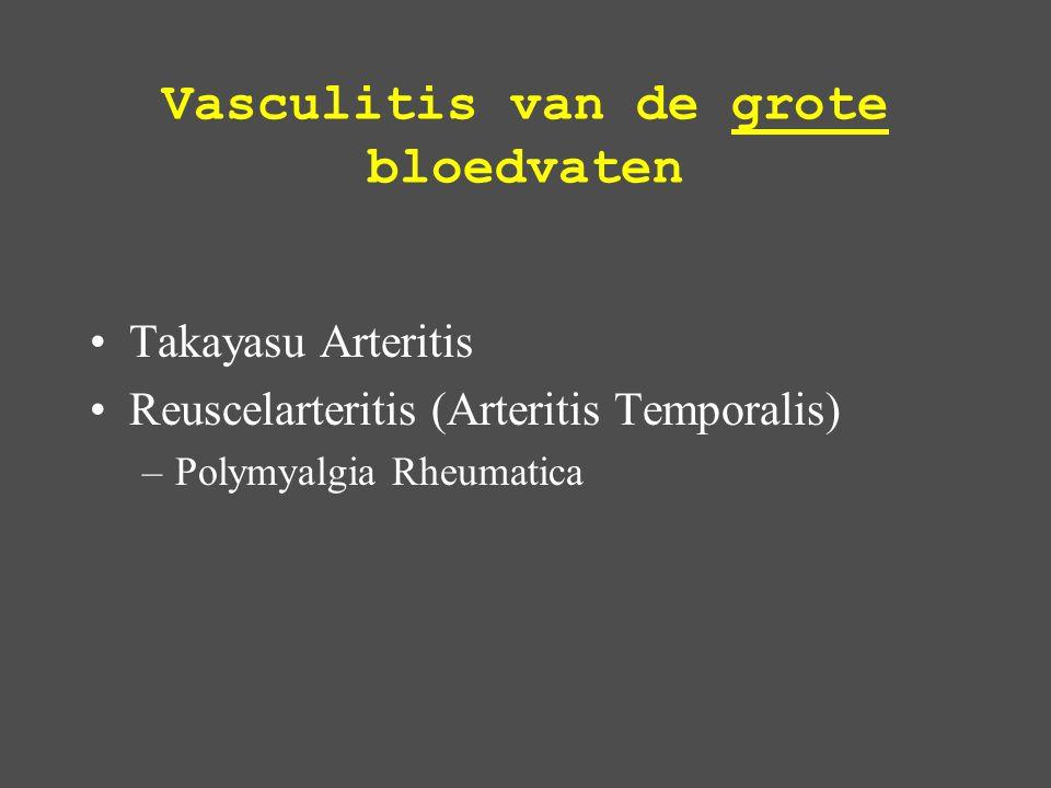 Vasculitis van de grote bloedvaten Takayasu Arteritis Reuscelarteritis (Arteritis Temporalis) –Polymyalgia Rheumatica