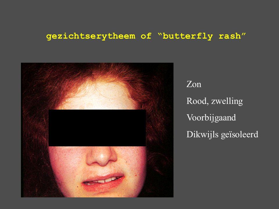 gezichtserytheem of butterfly rash Zon Rood, zwelling Voorbijgaand Dikwijls geïsoleerd
