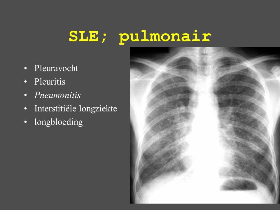 SLE; pulmonair Pleuravocht Pleuritis Pneumonitis Interstitiële longziekte longbloeding