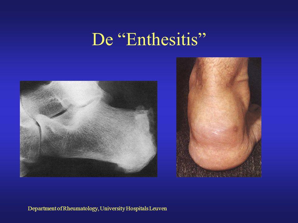 Department of Rheumatology, University Hospitals Leuven 1.Afwezigheid van reumafactor en reumatoide noduli 2. Perifere arthritis/asymmetrisch 3. Axial