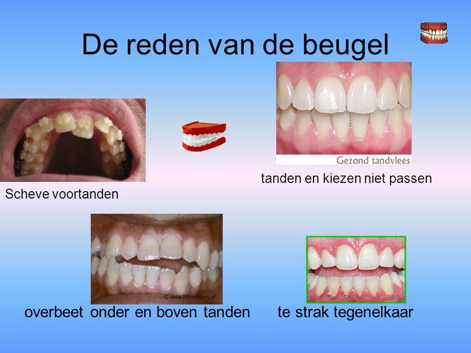 De reden van de beugel tanden en kiezen niet passen Scheve voortanden overbeet onder en boven tanden te strak tegenelkaar