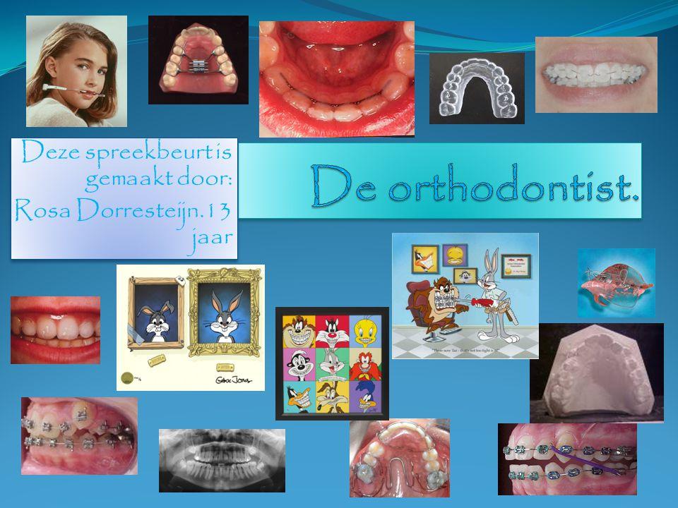 1.Bij welke orthodontist zit ik.2. En welke beugels ik heb gehad.