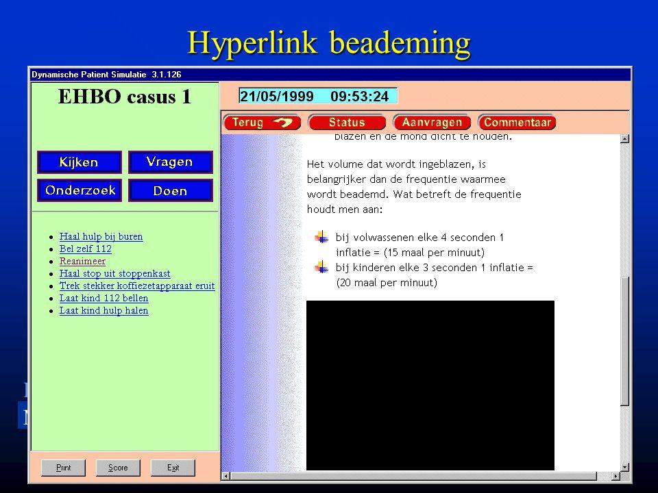LU MC Leiden University Medical Center Hyperlink beademing