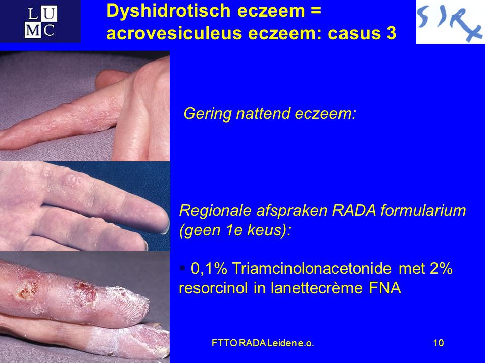 FTTO RADA Leiden e.o.10 Dyshidrotisch eczeem = acrovesiculeus eczeem: casus 3 Regionale afspraken RADA formularium (geen 1e keus):  0,1% Triamcinolonacetonide met 2% resorcinol in lanettecrème FNA Gering nattend eczeem: