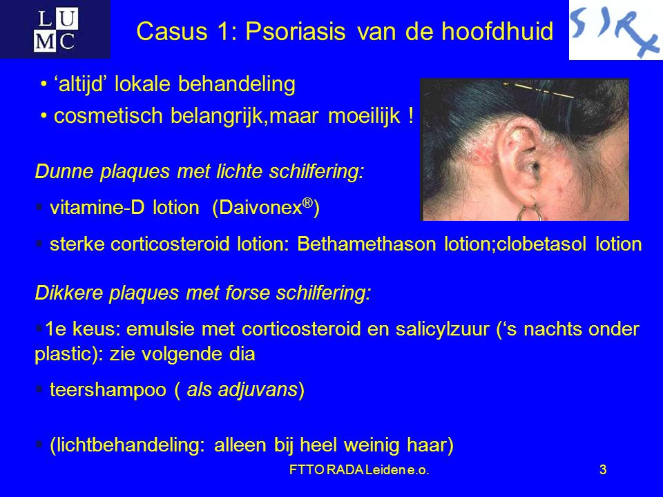 FTTO RADA Leiden e.o.3 Casus 1: Psoriasis van de hoofdhuid 'altijd' lokale behandeling cosmetisch belangrijk,maar moeilijk ! Dunne plaques met lichte