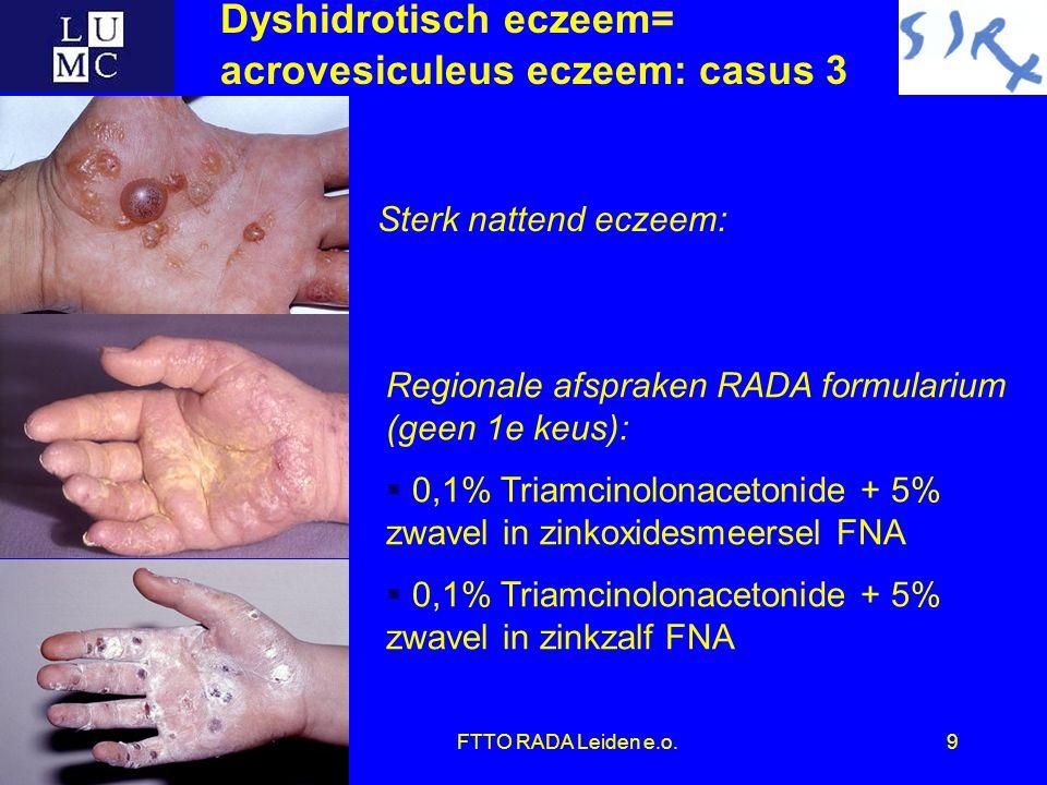 FTTO RADA Leiden e.o.9 Regionale afspraken RADA formularium (geen 1e keus):  0,1% Triamcinolonacetonide + 5% zwavel in zinkoxidesmeersel FNA  0,1% Triamcinolonacetonide + 5% zwavel in zinkzalf FNA Sterk nattend eczeem: Dyshidrotisch eczeem= acrovesiculeus eczeem: casus 3