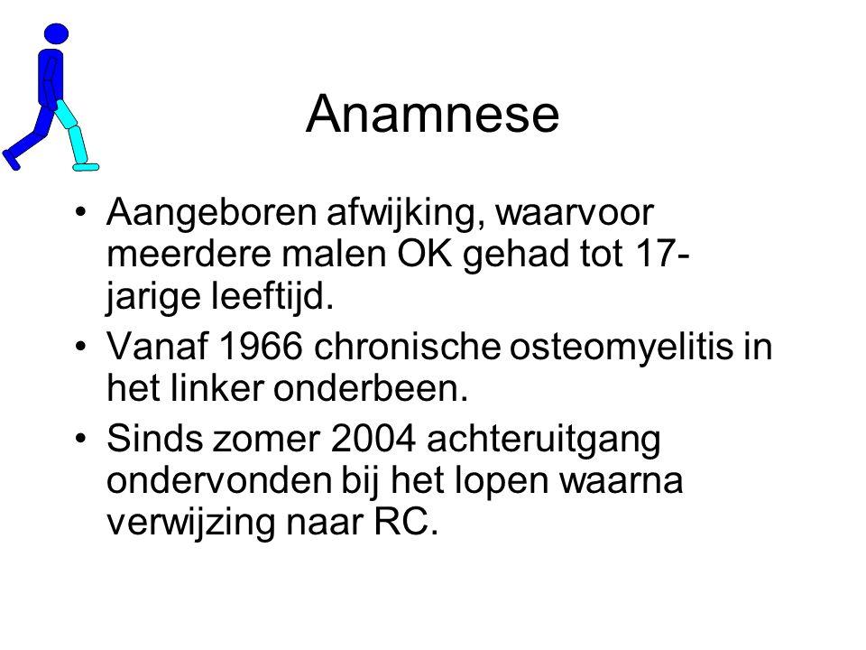 Anamnese Aangeboren afwijking, waarvoor meerdere malen OK gehad tot 17- jarige leeftijd.