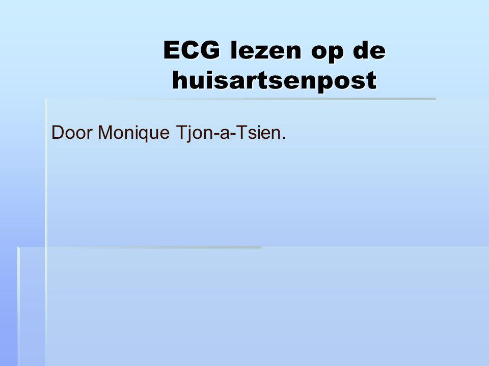ECG lezen op de huisartsenpost Door Monique Tjon-a-Tsien.