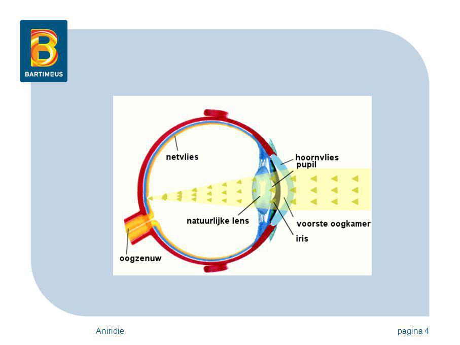 Aniridiepagina 5 Aniridie Iemand met aniridie: heeft geen iris; of mist een deel van de iris De iris is het gekleurde deel van het oog.