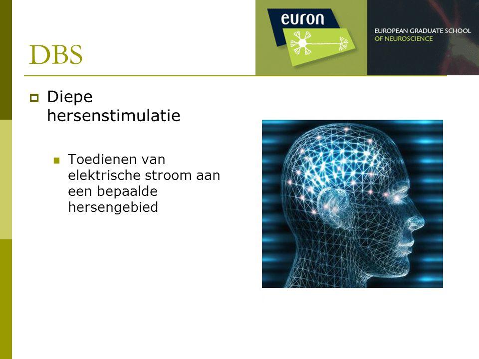 DBS  Diepe hersenstimulatie Toedienen van elektrische stroom aan een bepaalde hersengebied