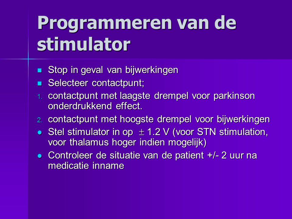 Programmeren van de stimulator Stop in geval van bijwerkingen Stop in geval van bijwerkingen Selecteer contactpunt; Selecteer contactpunt; 1.