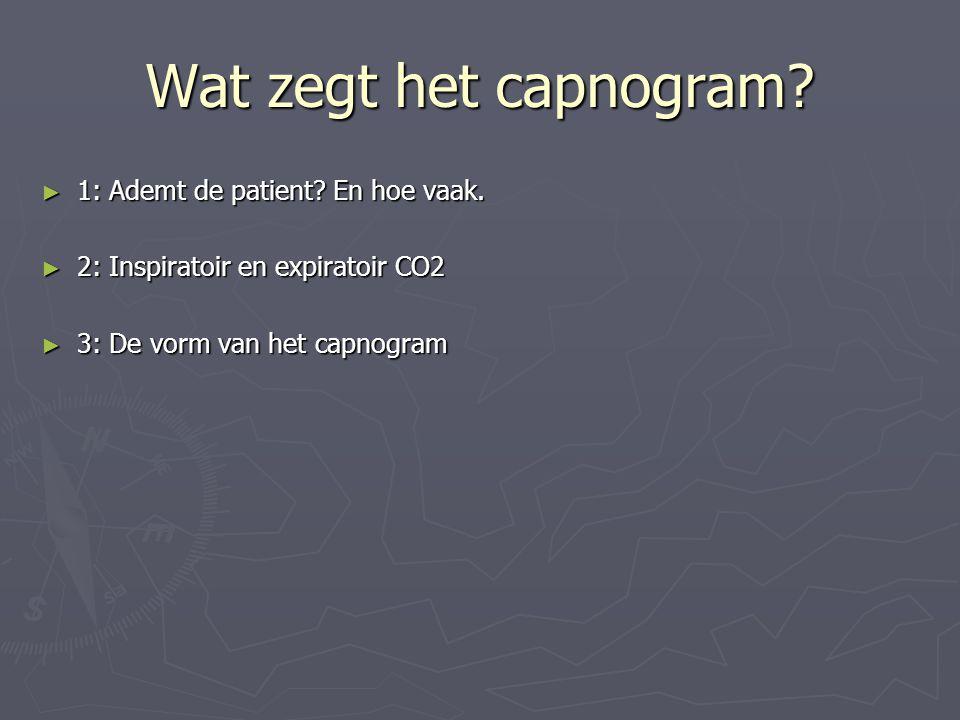 Wat zegt het capnogram? ► 1: Ademt de patient? En hoe vaak. ► 2: Inspiratoir en expiratoir CO2 ► 3: De vorm van het capnogram