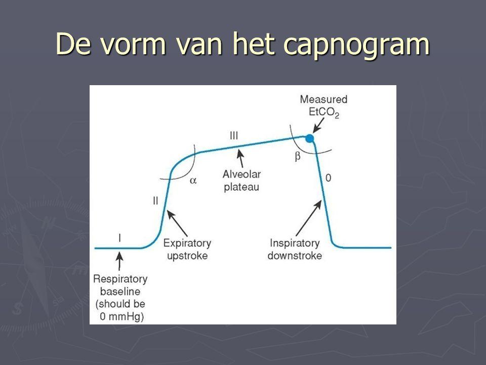 De vorm van het capnogram
