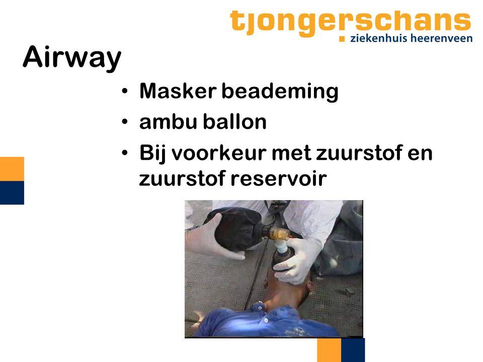 Airway Masker beademing ambu ballon Bij voorkeur met zuurstof en zuurstof reservoir