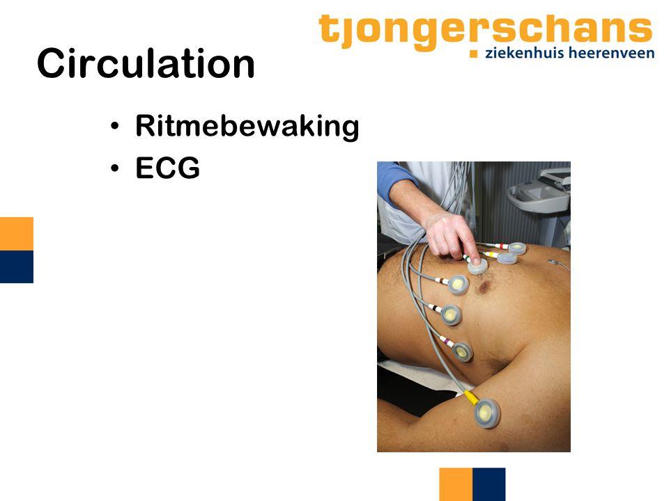 Circulation Ritmebewaking ECG