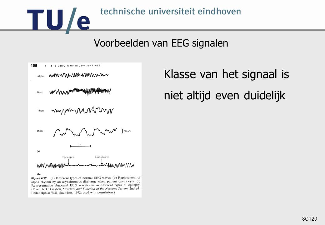 8C120 Voorbeelden van EEG signalen Klasse van het signaal is niet altijd even duidelijk