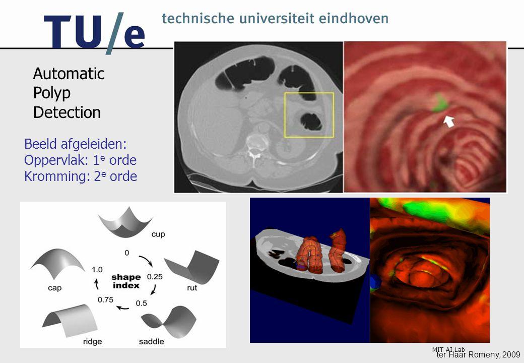 ter Haar Romeny, 2009 MIT AI Lab Automatic Polyp Detection Beeld afgeleiden: Oppervlak: 1 e orde Kromming: 2 e orde