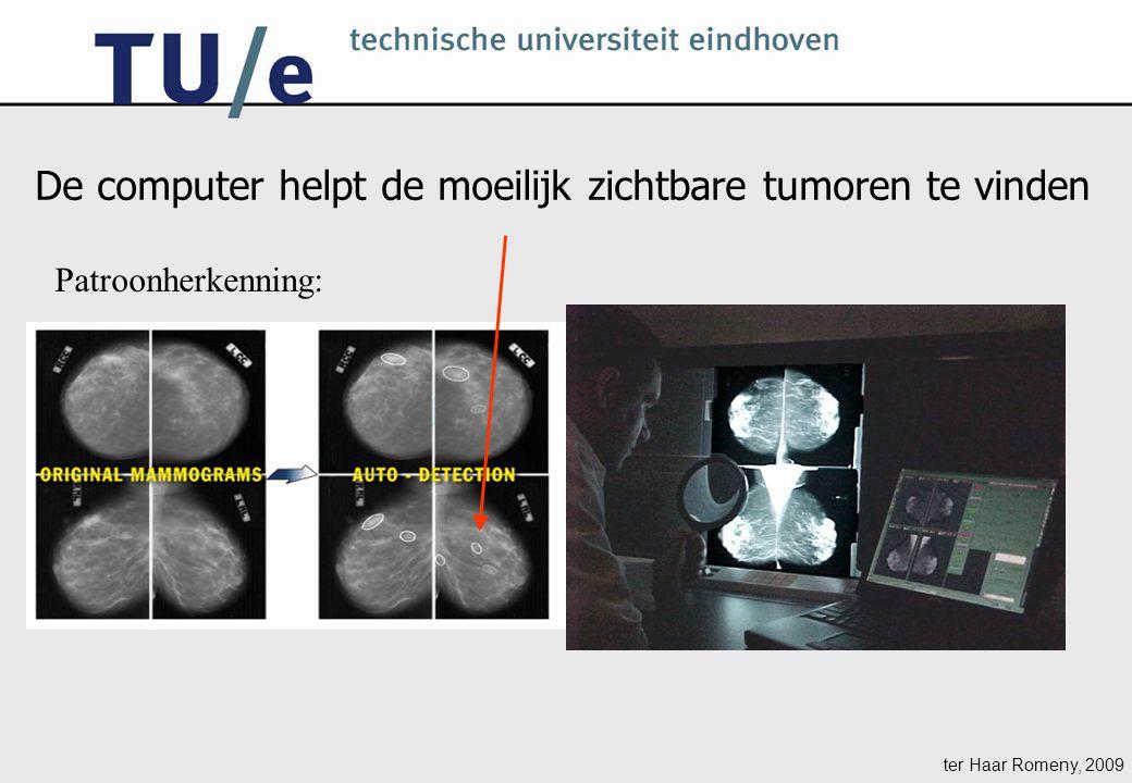 ter Haar Romeny, 2009 Patroonherkenning: De computer helpt de moeilijk zichtbare tumoren te vinden