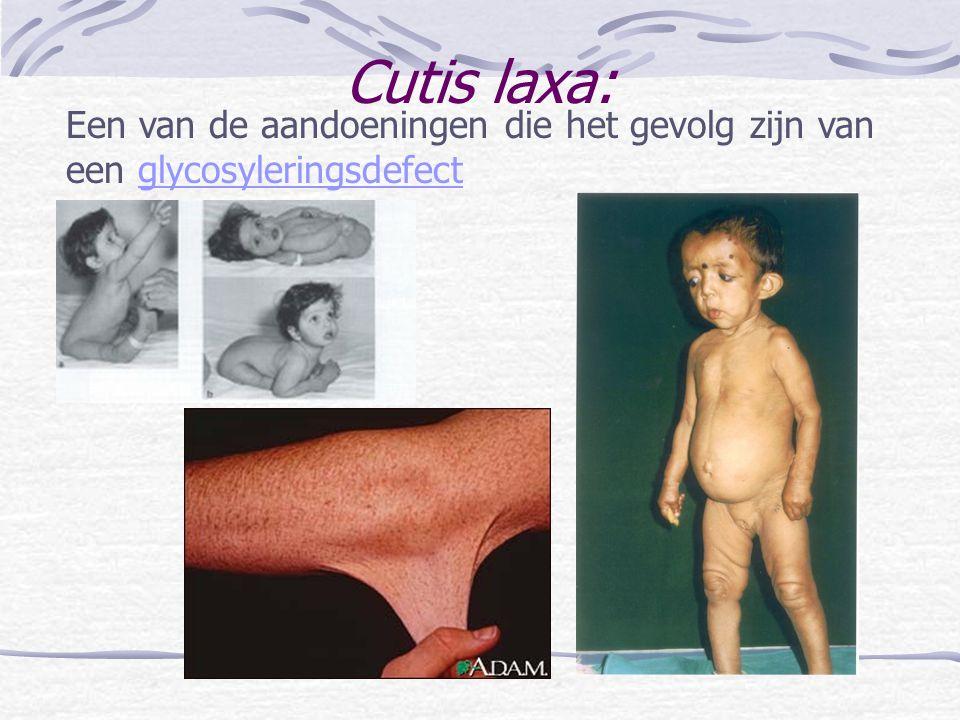 Cutis laxa: Een van de aandoeningen die het gevolg zijn van een glycosyleringsdefectglycosyleringsdefect