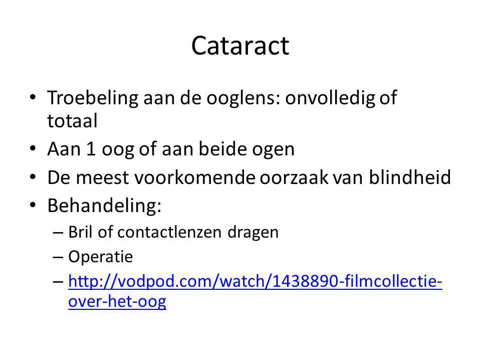 Cataract Troebeling aan de ooglens: onvolledig of totaal Aan 1 oog of aan beide ogen De meest voorkomende oorzaak van blindheid Behandeling: – Bril of contactlenzen dragen – Operatie – http://vodpod.com/watch/1438890-filmcollectie- over-het-oog http://vodpod.com/watch/1438890-filmcollectie- over-het-oog