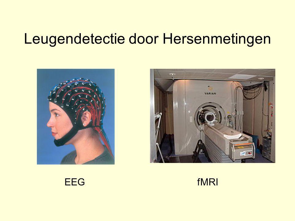 Leugendetectie door Hersenmetingen EEGfMRI