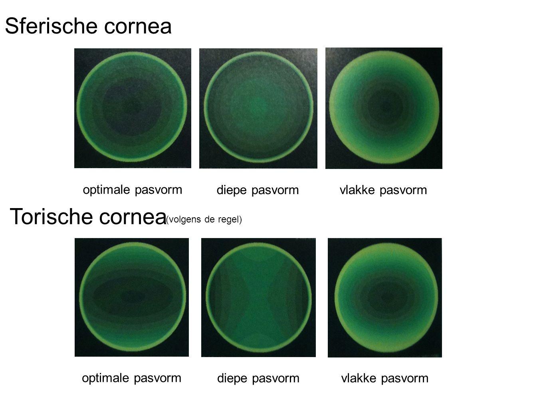optimale pasvorm diepe pasvormvlakke pasvorm optimale pasvorm diepe pasvormvlakke pasvorm Sferische cornea Torische cornea (volgens de regel)