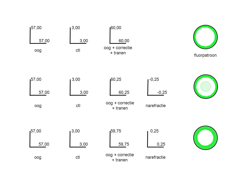 Voorbeeld 3 Bril: Sf -3,00 cil -0,50 as 180 Lens: Sf -3,25 Narefractie .