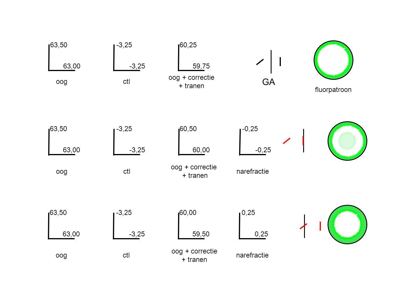 63,50 63,00 oogctl oog + correctie + tranen -3,25 60,25 59,75 fluorpatroon oogctl oog + correctie + tranen 63,50 63,00 -3,25 60,50 60,00 -0,25 narefractie oogctl oog + correctie + tranen 63,50 63,00 -3,25 60,00 59,50 0,25 narefractie GA