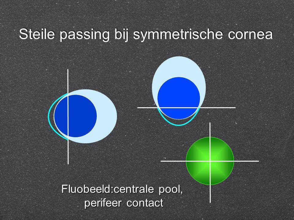 Steile passing bij symmetrische cornea Fluobeeld:centrale pool, perifeer contact perifeer contact