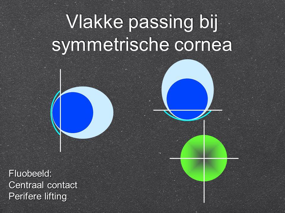 Vlakke passing bij symmetrische cornea Fluobeeld: Centraal contact Perifere lifting
